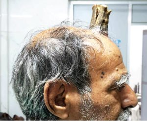 """للمرة الثانية.. رجل هندى ينمو له """"قرن"""" فى رأسه بطول 10 سم"""