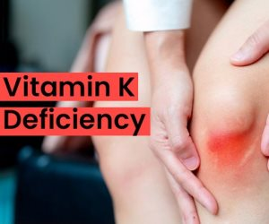 """الكدمات والنزيف المفاجئ في المخ.. خطورة نفص فيتامين """"ك"""""""
