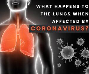 يسبب السعال المستمر.. كيف يؤثر الفيروس التاجي على الرئتين؟
