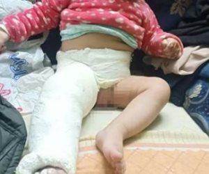 """""""المجرمة والملاك"""".. سيدة إمبابة متهمة بتعذيب رضيعتها بالحرق وكسر ضلوعها"""