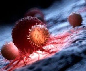 هل يمكن إصابة الرجال بـ«سرطان الثدي»؟