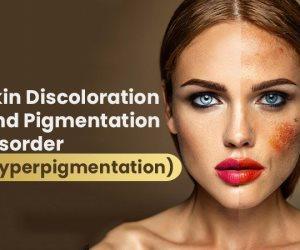 أضرار فرط التصبغ الخطيرة على الجلد.. تعرف على الأسباب والعلاج والوقاية