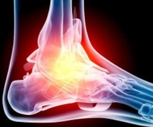 كسور العظام والتهاب المفاصل والسرطان.. اطمن على نفسك وأجرى هذه الأشعة؟