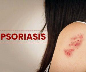 عوامل الخطر في انتشار الصدفية.. اعرف الأسباب والتشخيص والعلاج