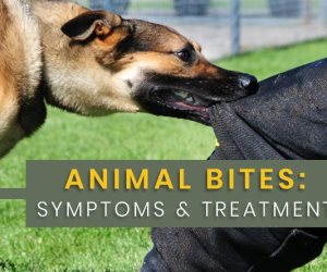 بين الأعراض والعلاج.. عوامل الخطر والوقاية من عض الحيوانات