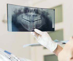 اطمن على نفسك.. أمراض تكشف عنها أشعة بانوراما الأسنان