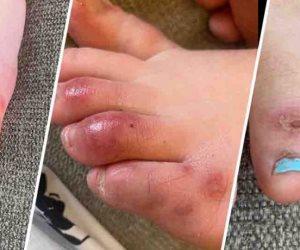مخاوف من أعراض جديدة لكورونا تبدأ بتورم الأصابع.. دراسة: لا يمكن استبعاد ذلك
