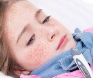 اطمن على نفسك.. كيف يشخص الطبيب إصابتك بالحمى القرمزية؟