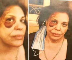 بالكمامات الطبية.. ننشر تفاصيل إحالة المتهمين بسرقة حفيدة الفنانة ماجدة الصباحي للمحاكمة