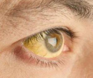 كيفية تشخيص اضطراب نقص الانتباه وفرط النشاط عند البالغين