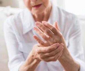 احترس!.. السمنة تزيد خطر الإصابة بالتهاب المفاصل الروماتويدى