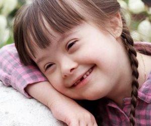 متلازمة داون قد تزيد من مخاطر الوفاة المرتبطة بـ COVID-19 بشكل كبير