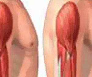 إنجاز كبير.. تسجيل أول دواء لمرضى ضمور العضلات خطوة لتخفيف معاناة الأهالى
