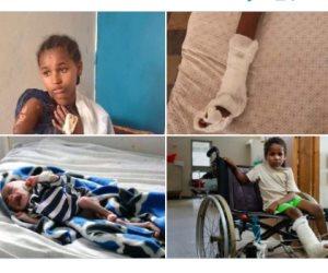 مشاهد مروعة للأطفال.. جيش حائز «نوبل للسلام» يرتكب مذابح ضد مواطنيه بتيجراي (صور)